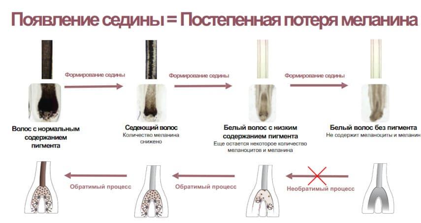 снижение меланина - появление седины