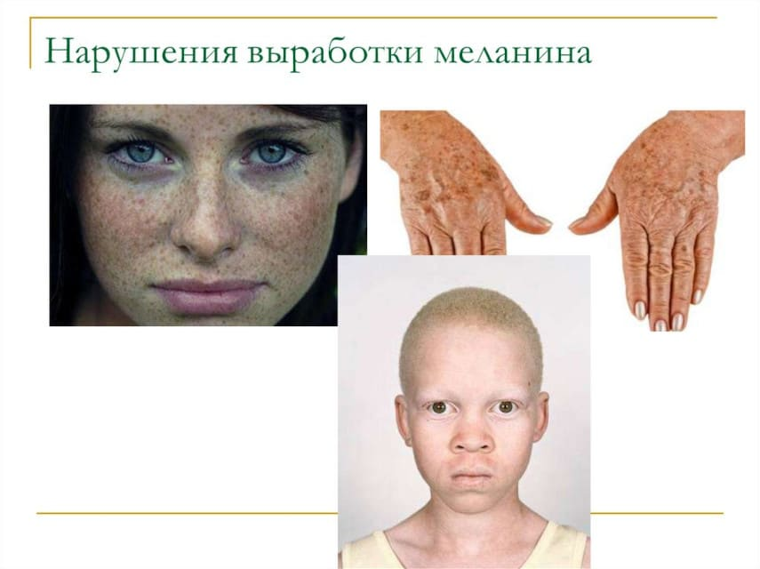 нарушения выработки меланина